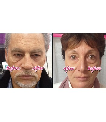Jeunesse instantly ageless box 50